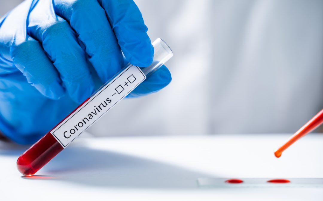 ¿Quieres saber si estás afectado por el coronavirus?